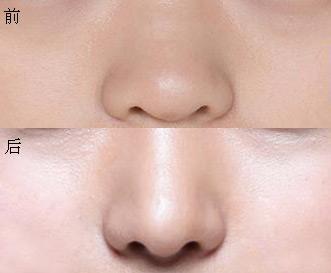 乐山做鼻子