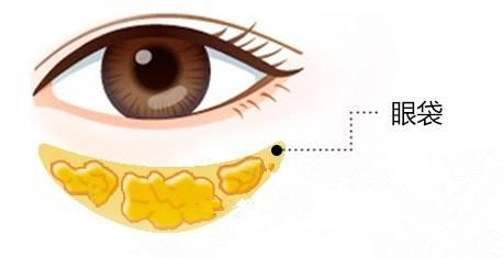 祛眼袋手术