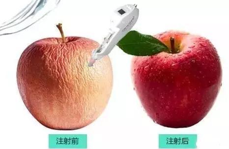 水光针注射多少钱